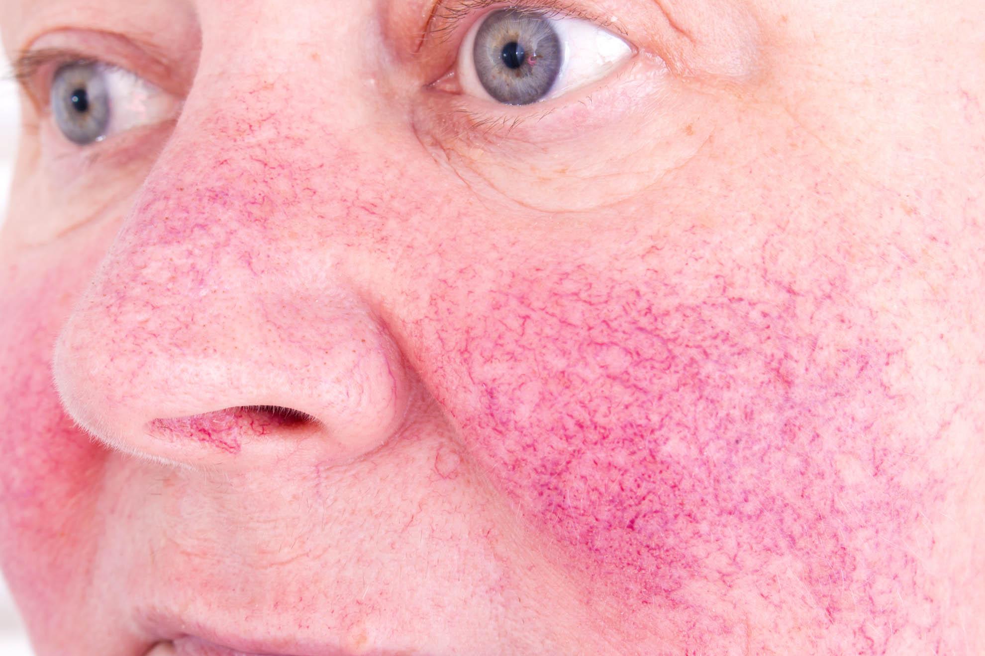 Helicobacter Pylori & Rosacea - Health n Well.com