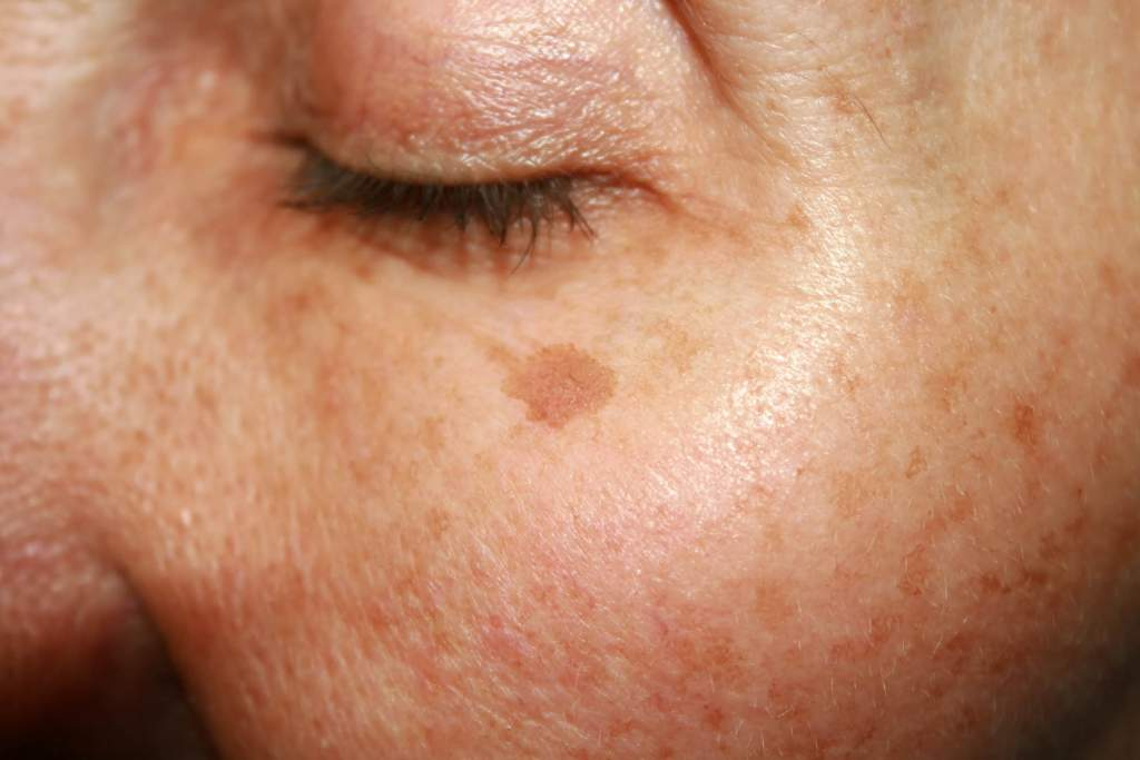 Most people have brown spots--or clusters of cells colored by pigment--on their skin. Nevi