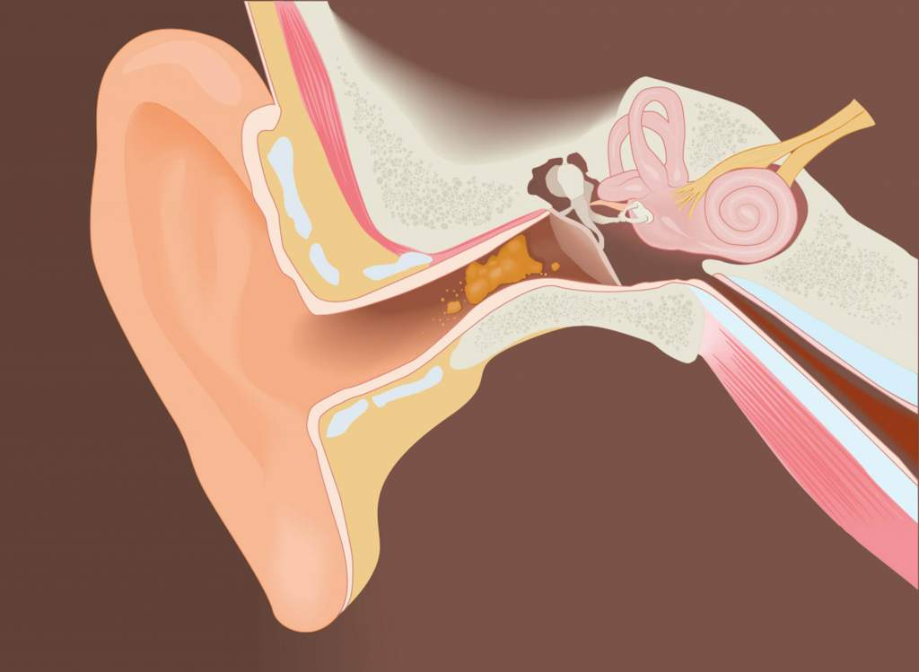 Ear wax is produced by cerumen glands in your ears and is meant as a protective agent. It traps any foreign objects such as bugs