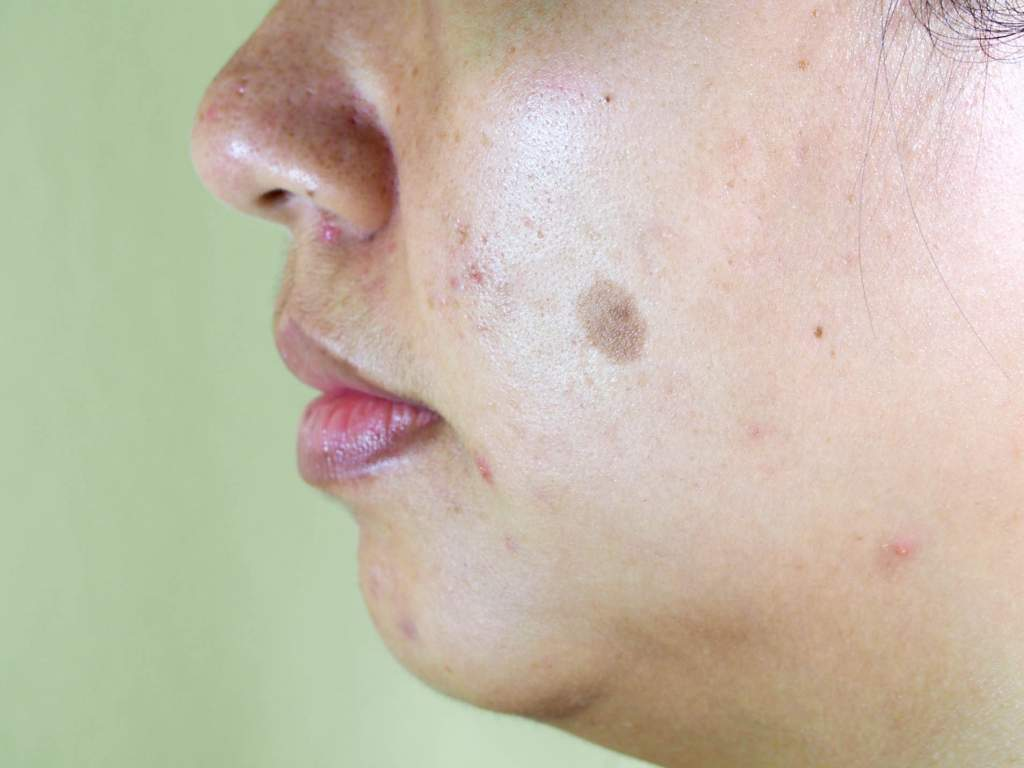 Melasma is a skin condition that causes brown patches to develop on sun-exposed areas