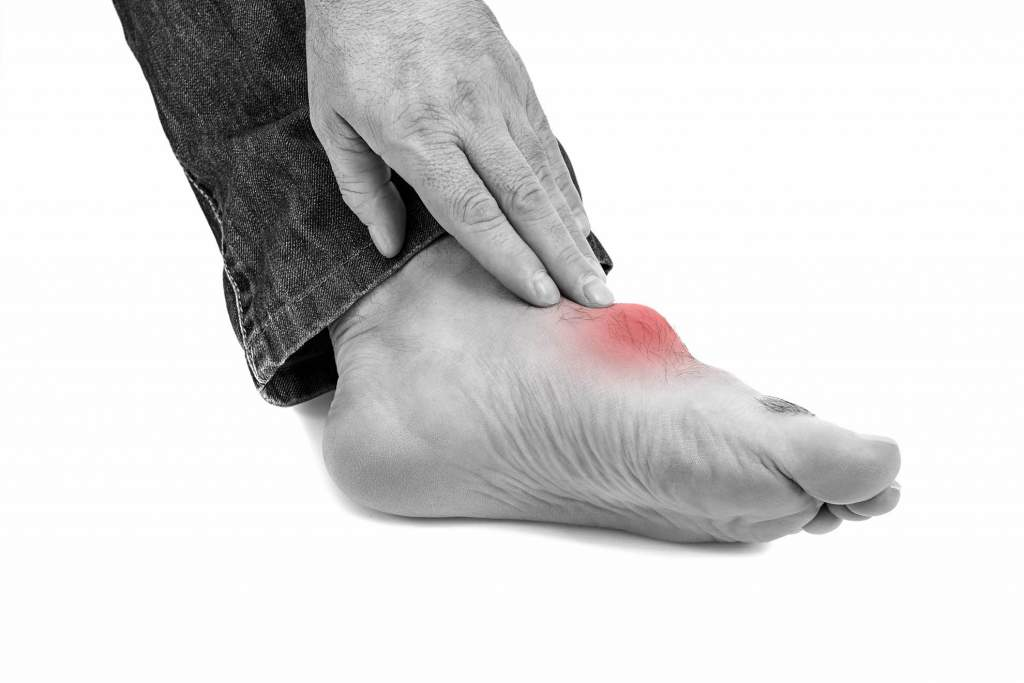 Gout is a painful form of arthritis that usually affects the toes and feet. The condition occurs when uric acid builds up and forms crystals. Diet plays an important role in the buildup of uric acid and can be an important part of treatment. Weight management and avoiding some foods that are rich in purines is the best method for relieving the pain and preventing an attack of gout.
