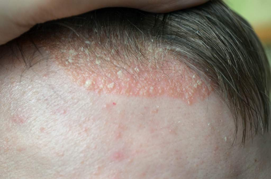 Scalp psoriasis is a chronic
