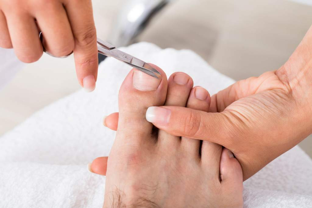 An ingrown toenail occurs when a toenail digs into the surrounding skin causing pain
